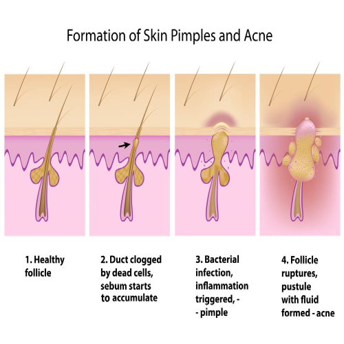 acne formation steps sq